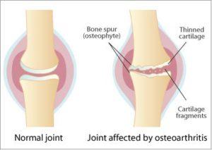Arthritis In Your Hands