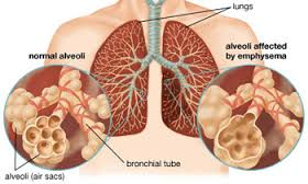 Cause and Prevention COPD