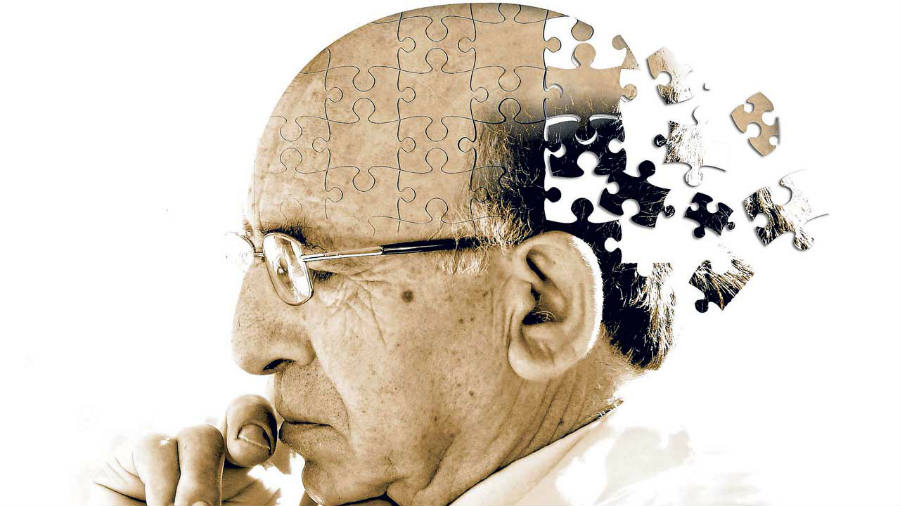FAQ Alzheimer disease