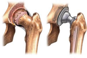 Hip and Knee Replacement Surgery