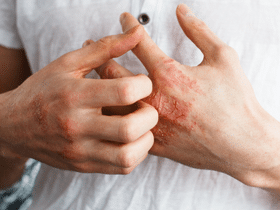 Psoriatic Arthritis Symptoms Causes + Self-Management