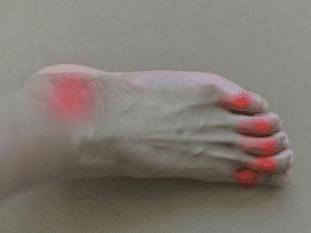Gout: Risks, Symptoms, Treatments, And Foods to Avoid