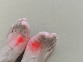 Risks, Symptoms, Treatments,& Foods to Avoid for Gout